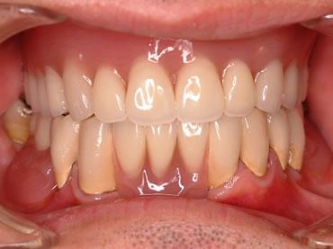 ミリング義歯(下)にて治療終了後 8年経過