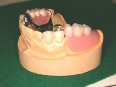 パーシャル・パラレル・ミリングによる義歯