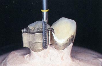 ミリング義歯は横揺れしにくい構造です