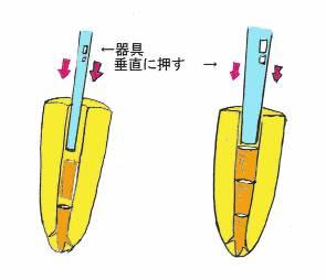 垂直加圧根充法
