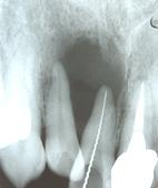 根管充填によって骨が再生した例