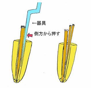 根側方加圧充填(ラテラルコンデンセーション)