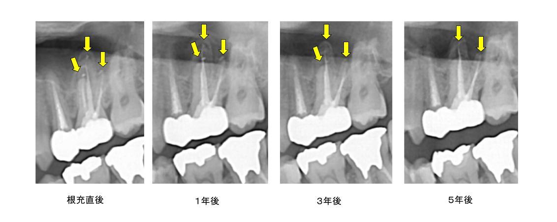 スーパー根管治療症例16