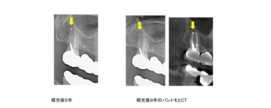 スーパー根管治療症例17