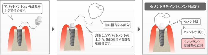 セメントリテイン(セメント固定)