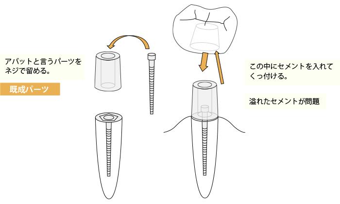 セメント固定のイメージ