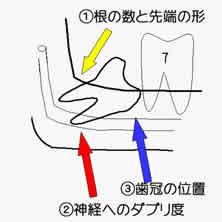 下歯槽神経麻痺を起し易い状況