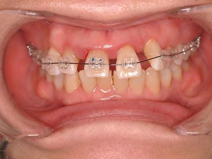 2.歯周病治療と矯正治療