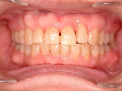 3.メンテナンス(抜歯なし)