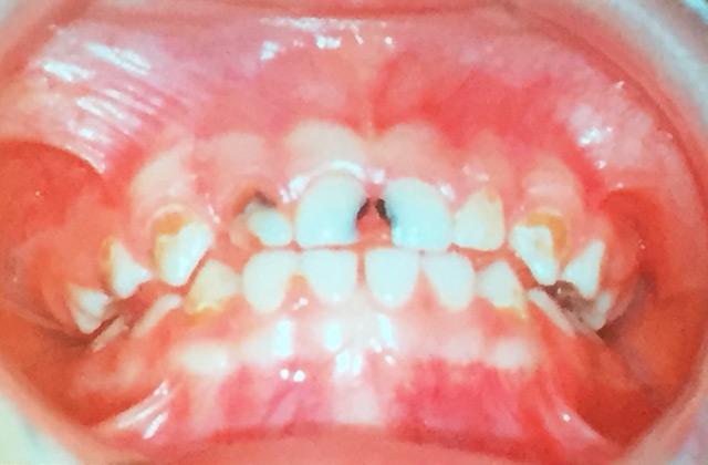 ジルコニアの白い乳歯冠